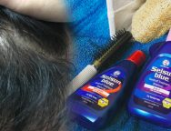 Selsun Blue: fighting dandruff from its roots
